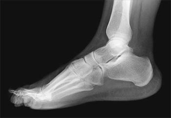 Рентгенография здорового голеностопного сустава почему трещат кости в суставах