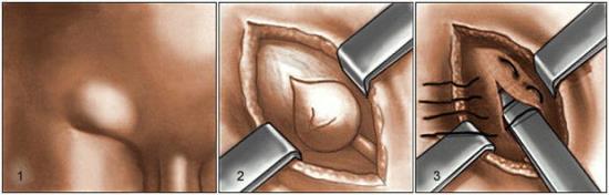 как вырезают грыжу паховую