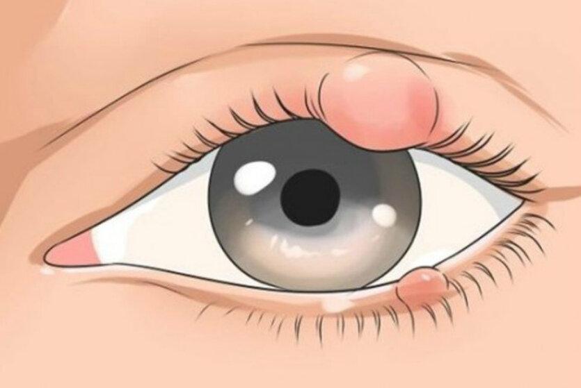 Ячмень на глазу у взрослых и детей: быстрое лечение в домашних условиях