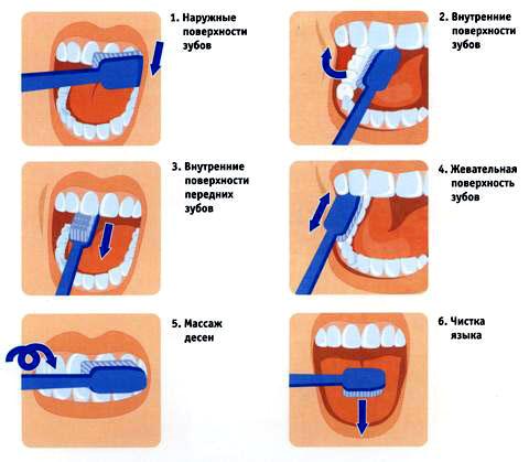 Как натягивают зубы
