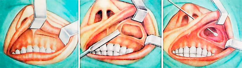Когда пациент не был тщательно обследован, а стоматолог не обладает информацией о толщине костной ткани, которая отделяет кистозную стенку от пазухового дна, а также в случае, когда необходимо удалить большое количество кости челюсти, довольно часто происходит разрыв тканей пазухи.
