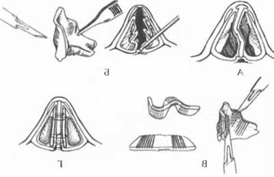 Ринопластика крыльев носа в спб